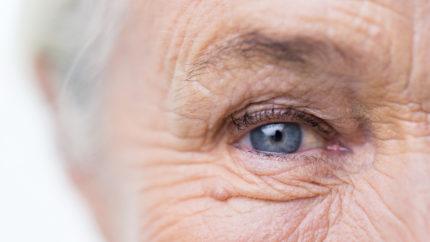 Wonkhe eye wrinkles